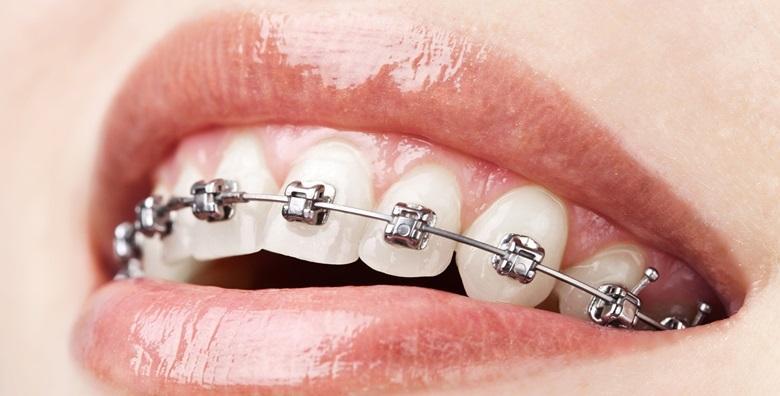 Aparatić za zube - postavljanje, svi pregledi tijekom nošenja i GRATIS retainer za 4.300 kn!