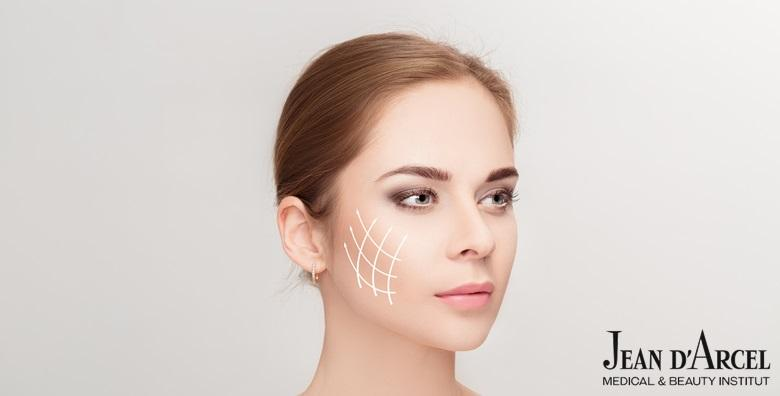 Dijamantna mikrodermoabrazija s dijatermijom, Renovar tretman hijaluronom uz serum protiv bora i čišćenje lica za 199 kn!