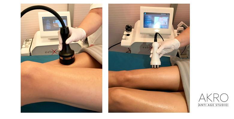 Inovativni program mršavljenja prilagođen upravo vama za 1.599 kn! Uz 30 tretmana smanjite obujam za 6 -10 cm, eliminirajte celulit i zategnite kožu!