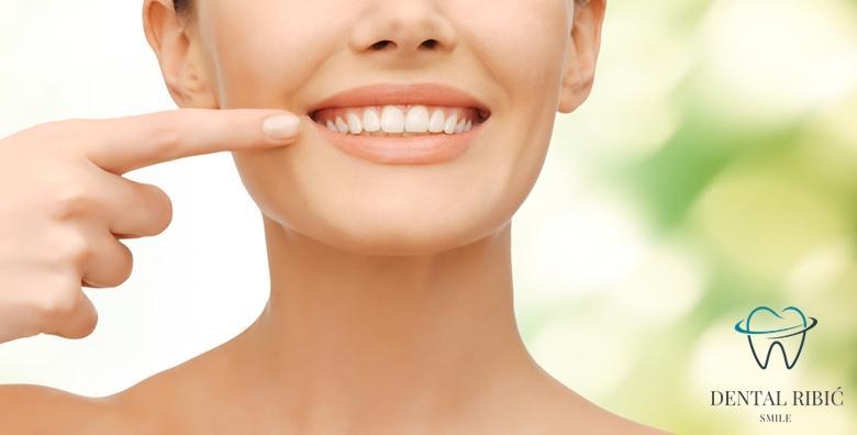 [ZUBNA LJUSKICA] Savršena imitacija prirodnog zuba - poboljšajte izgled, boju i oblik uz bezbolan estetski zahvat u Ordinaciji Ribić za 439 kn!