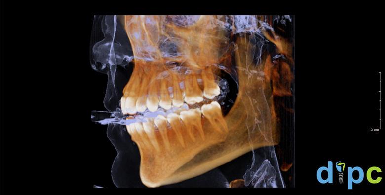 CT gornje i donje čeljusti CBCT uređajem koji daje trodimenzionalnu snimku visoke rezolucije + stomatološki pregled gratis za 399 kn!
