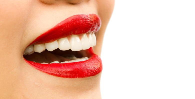 Aparatić za zube - estetski ili konvencionalni od 4.250 kn!